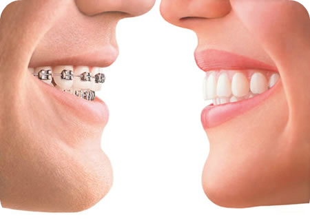 invisalign-vs-braces-picture1